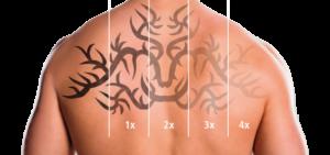 Q10 Nd:YAG Tattooentfernung von Medicalay