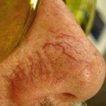 Teleangiektasien Behandlung mit Geräten von Medicalay