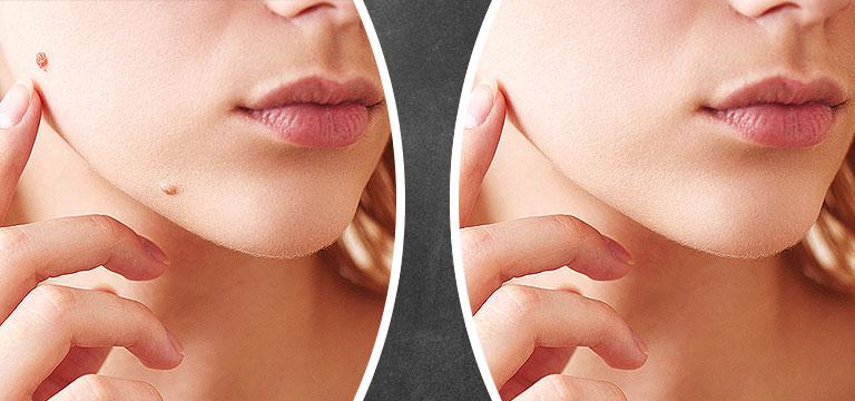 MEDICALAY Hautverjüngerung
